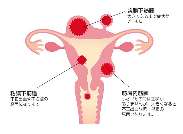 筋腫 妊娠 子宮